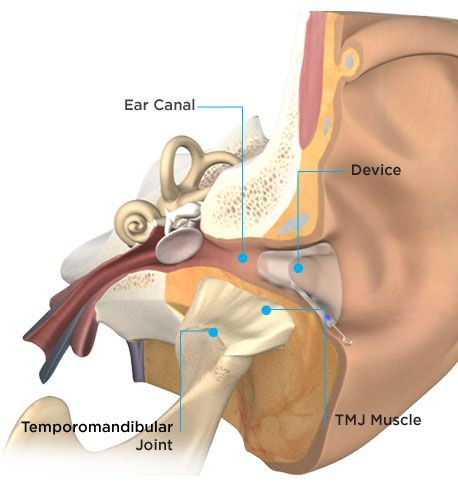 View of inside of ear canal with TMJ NextGeneration in place. Note the proximity of the jaw joint (TMJ) to TMJ NextGen